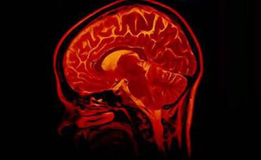 feature_911 on brain