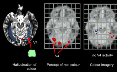 hallucinations_and_the_cheating_brain